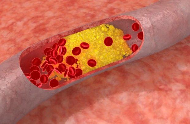 Уровень холестерина остаётся неизменным вне зависимости от продуктов, потребляемых в пищу