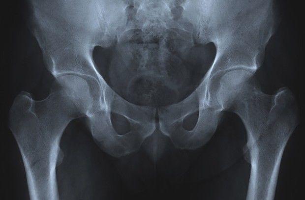 У некоторых людей кости с возрастом становятся прочнее